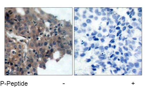 Immunohistochemistry (Formalin/PFA-fixed paraffin-embedded sections) - Anti-p21 (phospho T145) antibody (ab47300)