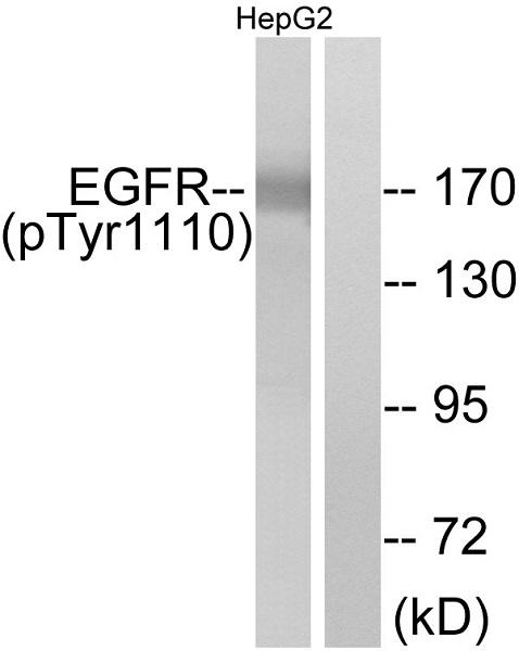 Western blot - Anti-EGFR (phospho Y1110) antibody (ab47370)