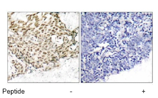 Immunohistochemistry (Formalin/PFA-fixed paraffin-embedded sections) - Anti-p95 NBS1 antibody (ab47386)
