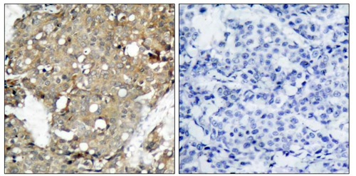 Immunohistochemistry (Formalin/PFA-fixed paraffin-embedded sections) - Anti-STAT1 antibody (ab47425)