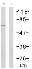 Western blot - Anti-Chk2 antibody (ab47433)