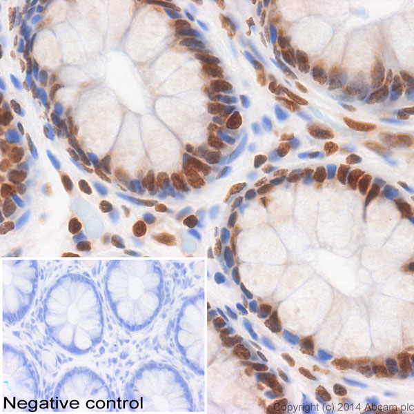 Immunohistochemistry (Formalin/PFA-fixed paraffin-embedded sections) - Anti-Histone H2A.X antibody (ab47503)