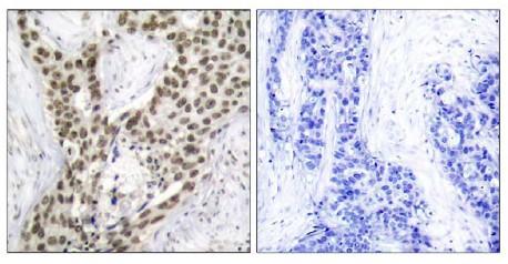 Immunohistochemistry (Paraffin-embedded sections) - Androgen Receptor (phospho S213) antibody (ab47562)