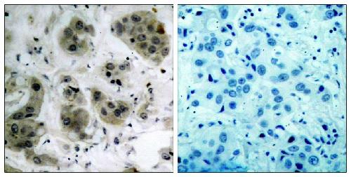 Immunohistochemistry (Formalin/PFA-fixed paraffin-embedded sections) - Anti-AKT1 antibody (ab47610)