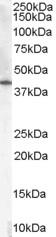 Western blot - Anti-HSD3B1 antibody (ab48018)