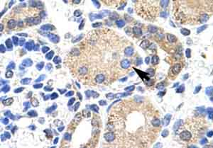Immunohistochemistry (Formalin/PFA-fixed paraffin-embedded sections) - Anti-Kv beta 2 antibody (ab48551)