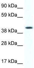 Western blot - Anti-FOXF1 antibody (ab48828)