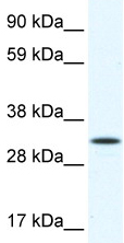 Western blot - Anti-ARA9 antibody (ab48833)
