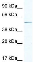 Western blot - Anti-Arx antibody (ab48856)