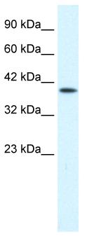 Western blot - P2X2 antibody (ab48864)