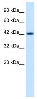 Western blot - Anti-ZP3 antibody (ab48895)
