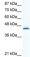 Western blot - Anti-ALX4 antibody (ab49107)