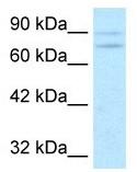 Western blot - Anti-ZNF81 antibody (ab49119)