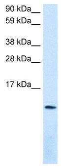 Western blot - Anti-SDF1 antibody (ab49124)