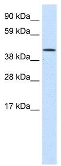 Western blot - Anti-SMARCA1 antibody (ab49126)