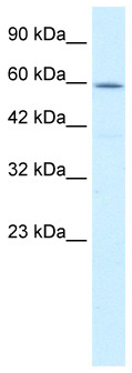 Western blot - Anti-TCP1 delta antibody (ab49151)