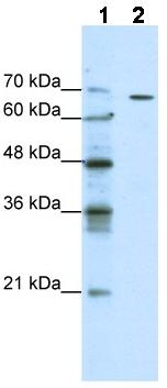 Western blot - Anti-GABRQ antibody (ab49188)
