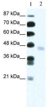Western blot - Anti-ZNF312 antibody (ab49245)