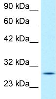 Western blot - Anti-RGS16 antibody (ab49259)