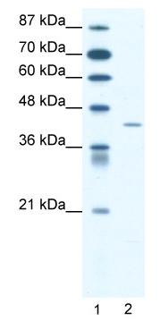 Western blot - Anti-Somatostatin Receptor 4 antibody (ab49298)