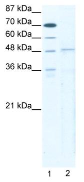 Western blot - Anti-TBX5 antibody (ab49308)
