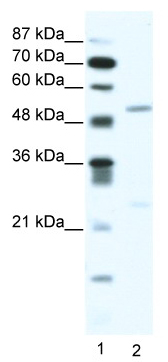 Western blot - Anti-BRD9 antibody (ab49313)