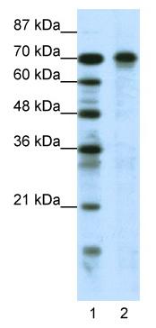 Western blot - Anti-HIC1 antibody (ab49326)
