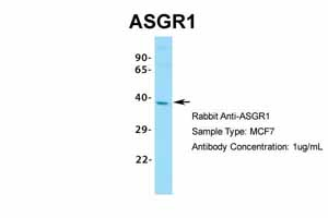 Western blot - Anti-Asialoglycoprotein Receptor 1 antibody (ab49355)