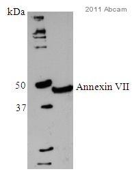 Western blot - Anti-Annexin VII antibody [203-217/6] (ab49838)