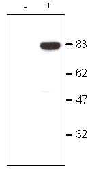 Western blot - Anti-CDYL  antibody - ChIP Grade (ab5188)