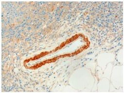 Immunohistochemistry (Formalin/PFA-fixed paraffin-embedded sections) - Anti-USP20 antibody (ab5272)