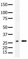 Western blot - Anti-SENP8 antibody (ab5279)