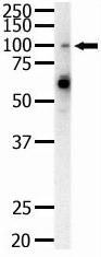 Western blot - Anti-Eph receptor A1 antibody (ab5376)