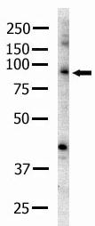Western blot - Anti-Eph receptor A2 antibody (ab5386)
