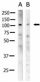 Western blot - Anti-Eph receptor A2 antibody (ab5387)