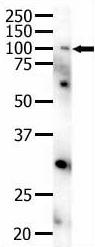 Western blot - Eph receptor A4 antibody (ab5389)