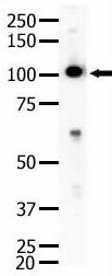Western blot - Eph receptor A4 antibody (ab5396)