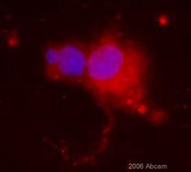 Immunocytochemistry/ Immunofluorescence - EphA4 antibody (ab5396)