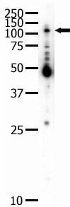 Western blot - Anti-Eph receptor B2 antibody (ab5418)