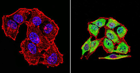 Immunocytochemistry/ Immunofluorescence - Anti-Hsp70 [2A4] antibody (ab5442)