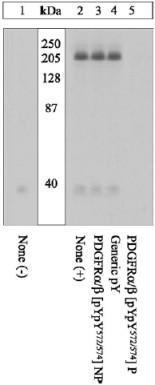 Western blot - Anti-PDGF Receptor alpha + beta (phospho Y572 + Y574) antibody (ab5443)