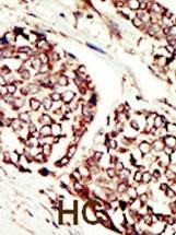 Immunohistochemistry (Formalin/PFA-fixed paraffin-embedded sections) - Anti-ErbB 3 antibody (ab5470)