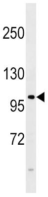 Western blot - Anti-FGFR4 antibody (ab5481)