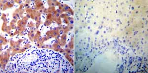 Immunohistochemistry (Formalin/PFA-fixed paraffin-embedded sections) - Anti-PDI antibody [RL77] (ab5484)