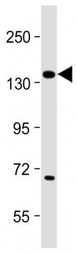 Western blot - Anti-Insulin Receptor antibody (ab5500)