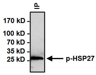 Immunoprecipitation - Anti-Hsp27 (phospho S15) antibody (ab5581)