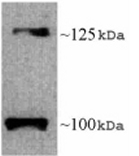 Western blot - Leptin Receptor antibody (ab5593)