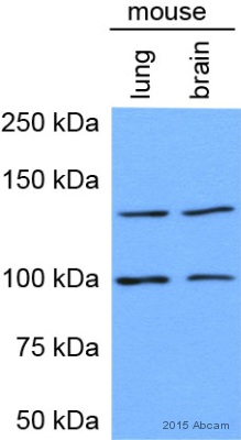 how to read western blot results
