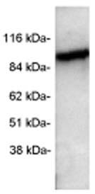 Western blot - Anti-PDE6 alpha antibody (ab5659)