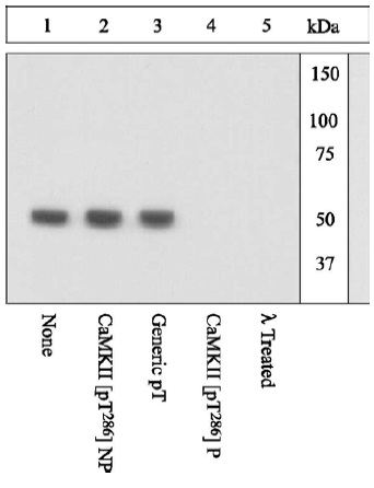 Western blot - CaMKII alpha  (phospho T286) antibody (ab5683)